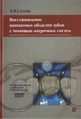 Салова А.В. Восстановление контактных областей зубов с помощью матричных систем