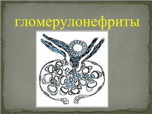 Гломерулонефриты
