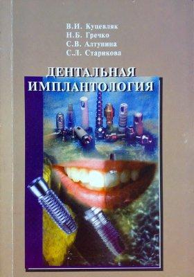Куцевляк В.И., Гречко Н.Б., Алтунина С.В., Старикова С.Л. Дентальная имплантология