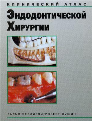 Беллизи Р., Лушин Р. Клинический атлас эндодонтической хирургии