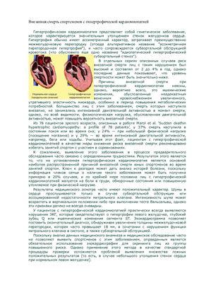 Внезапная смерть спортсменов с гипертрофической кардиомиопатией