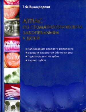 Виноградова Т.Ф. Атлас по стоматологическим заболеваниям у детей