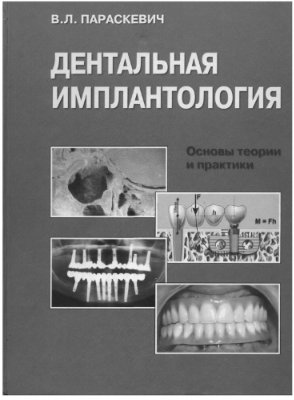 Параскевич В.Л. Дентальная имплантология: Основы теории и практики