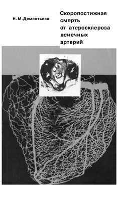 Дементьева Н.М. Скоропостижная смерть от атеросклероза венечных артерий
