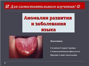 Аномалии развития и заболевания языка