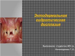 Эктодермальная гидротическая дисплазия
